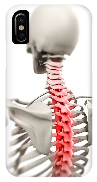 Back Pain, Conceptual Artwork Phone Case by Sciepro