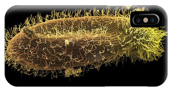 Paramecium Protozoan, Sem Phone Case by Steve Gschmeissner