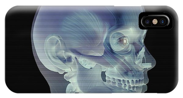 Skull Phone Case by Friedrich Saurer