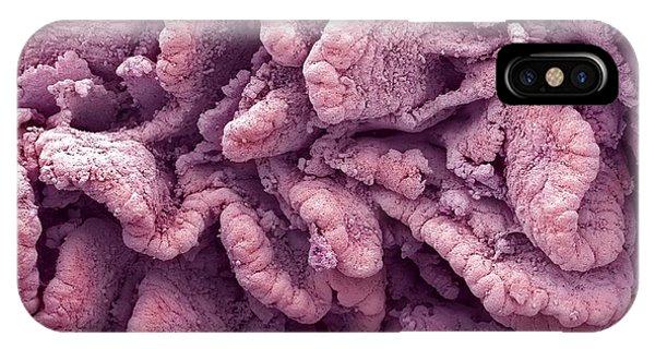 Intestinal Villi, Sem Phone Case by Steve Gschmeissner