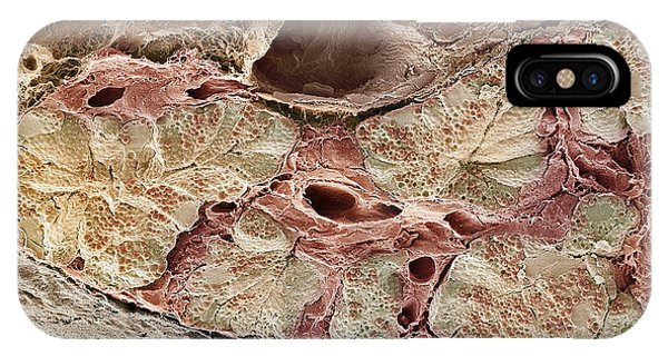 Pancreas Tissue, Sem Phone Case by Steve Gschmeissner