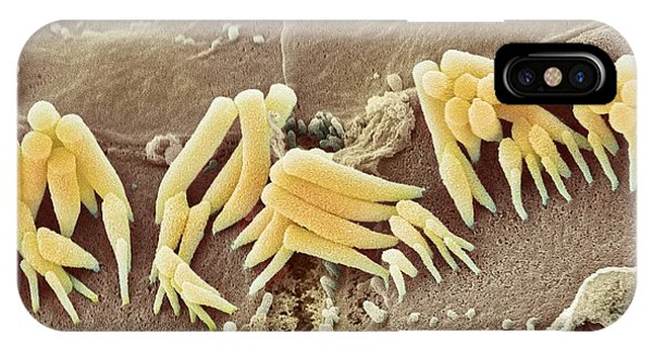 Inner Ear Hair Cells, Sem Phone Case by Steve Gschmeissner