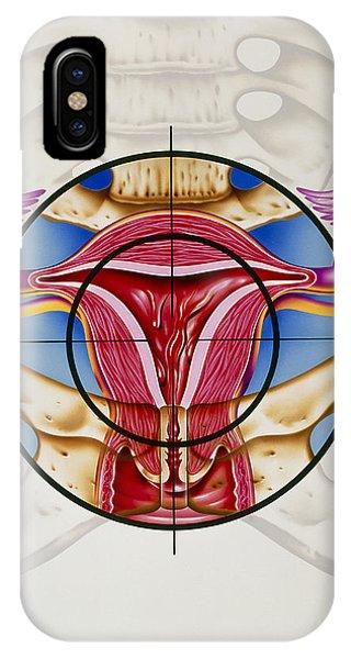 Artwork Of The Uterus During Menstruation Phone Case by John Bavosi