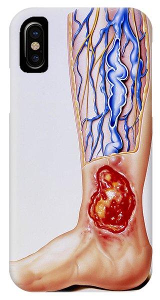 Artwork Of Varicose Veins & Ulcer On Leg Phone Case by John Bavosi