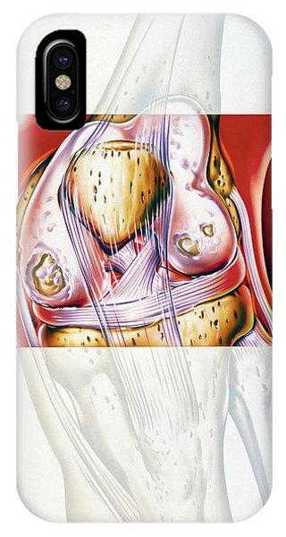 Artwork Showing Rheumatoid Arthritis Of The Knee Phone Case by John Bavosi