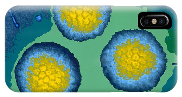 Coloured Tem Of Three Adenoviruses Phone Case by Dr Linda Stannard, Uct