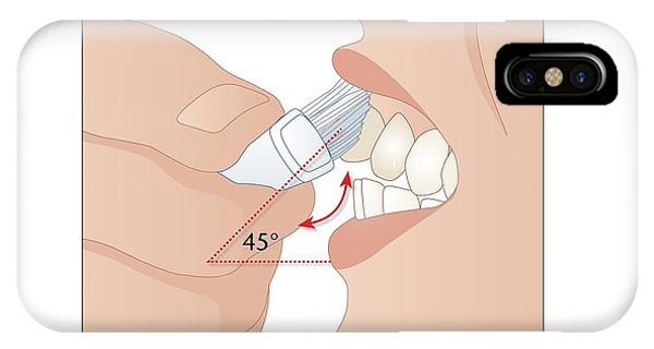 Dental Hygiene, Artwork Phone Case by Peter Gardiner