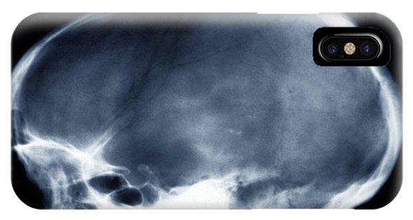 Dolichocephalic Skull Deformity, X-ray Phone Case by Zephyr
