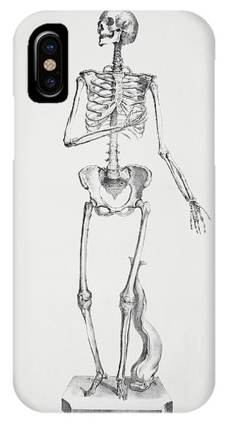 Female Skeleton Phone Case by Sheila Terry