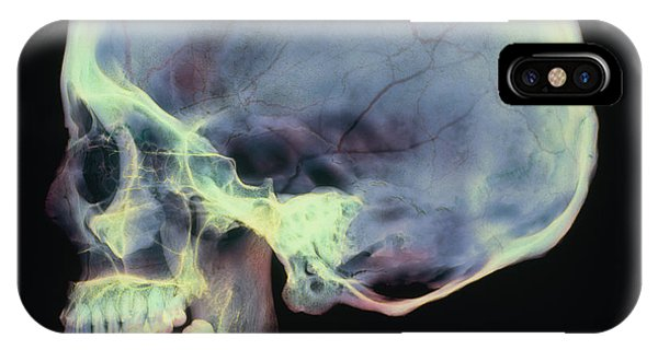 Human Skull, X-ray Phone Case by D. Roberts