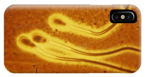 Light Micrograph Of Sperm From A Bull Phone Case by Dr T E Thompson