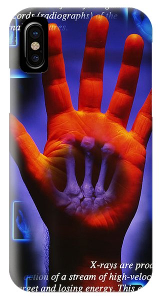 Radiography Phone Case by Tim Vernon, Lth Nhs Trust
