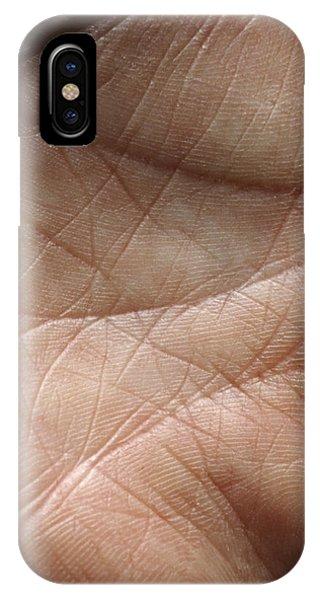 Skin Phone Case by Mike Devlin