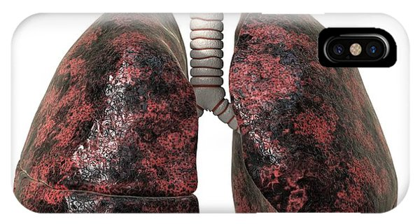Smoker's Lungs, Artwork Phone Case by David Mack