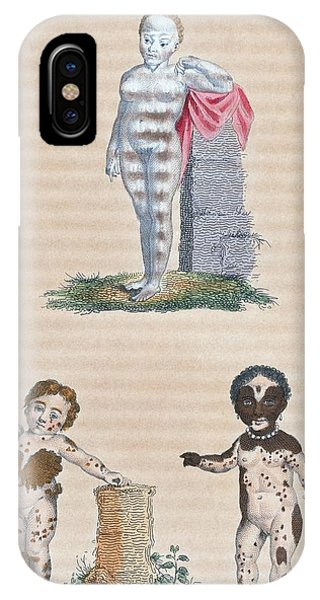 Varieties In The Human Species, Artwork Phone Case by General Research Division New York Public Library