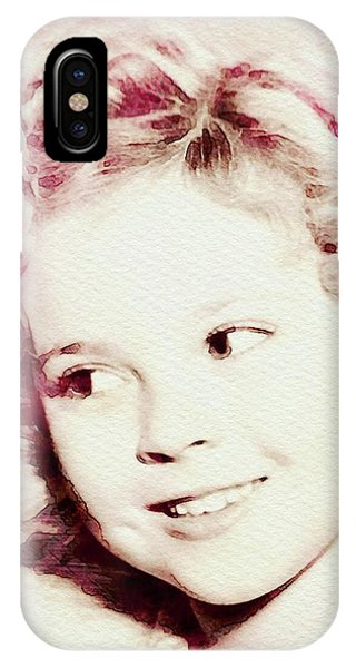 Shirley Temple, Vintage Actress IPhone Case