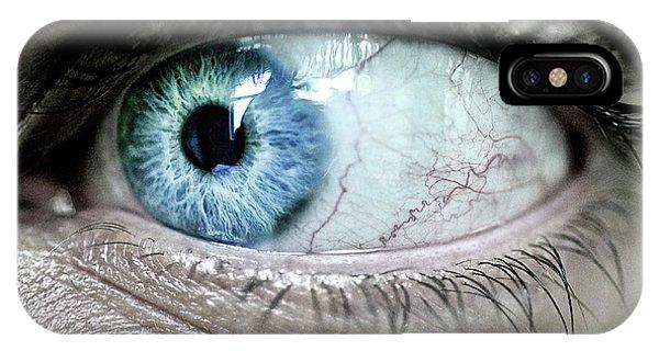 Beautiful Blue Eye IPhone Case