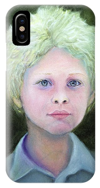 Boy With Curly Hair IPhone Case