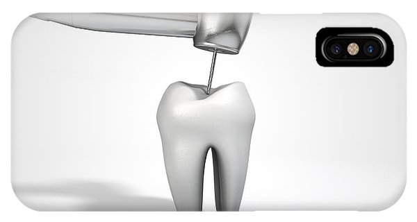 Dentists Drill And Tooth IPhone Case