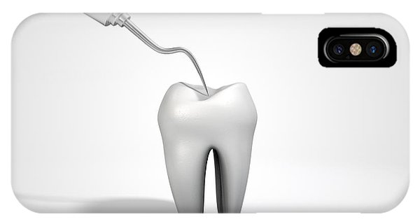 Dentists Probe Hook And Tooth IPhone Case