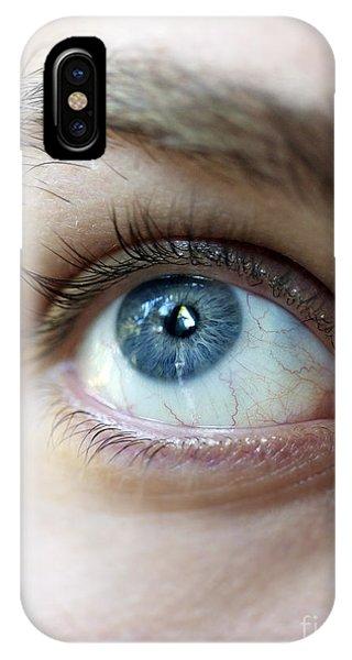 Eye Up IPhone Case
