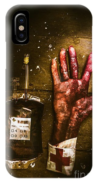 Zombies iPhone Case - Frankenstein Transplant Experiment by Jorgo Photography - Wall Art Gallery