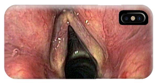 Healthy Larynx Phone Case by Gastrolab