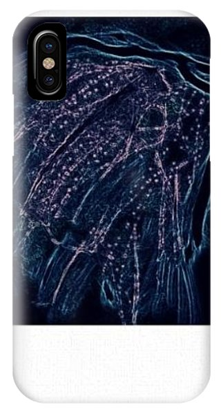 iPhone Case - Reanimated  by Kerri Thompson