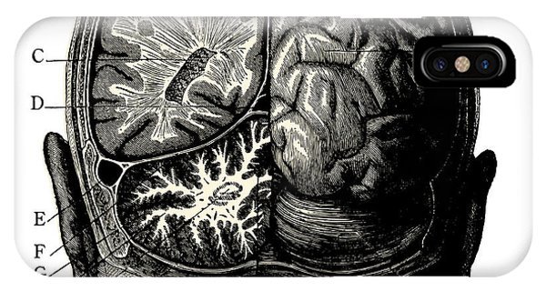 Thought iPhone Case - Humain Brain -vintage Engraved by Lynea