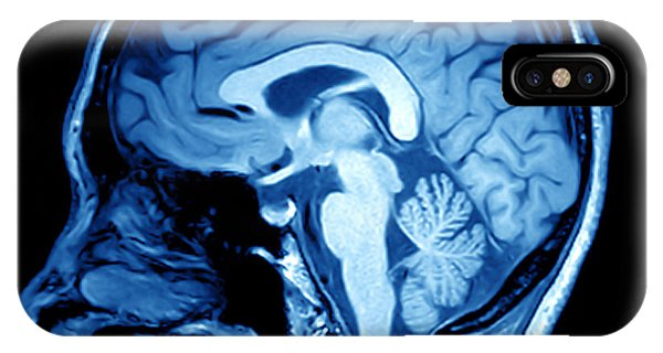 Brain iPhone Case - Magnetic Resonance Image Mri Of The by Mriman