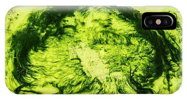 Rhapsody In Green IPhone Case