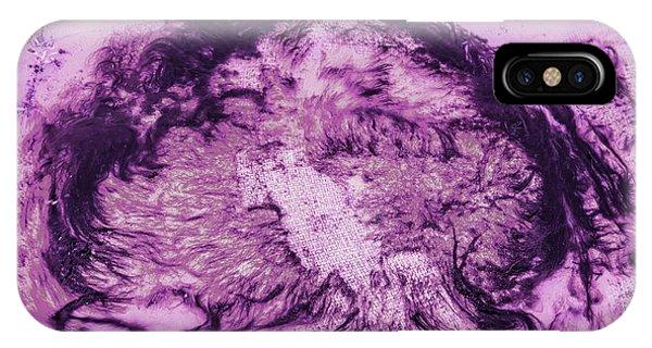 Rhapsody In Purple IPhone Case