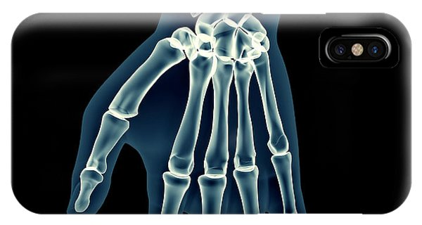 Spines iPhone Case - X-ray Human Body Of A Man With Skeleton by Posteriori