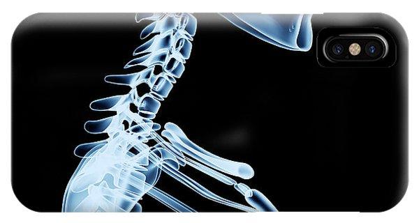 Spines iPhone Case - X-ray Skeleton Röntgen On Black by Posteriori