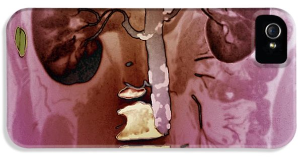 Aortic Atherosclerosis IPhone 5 Case