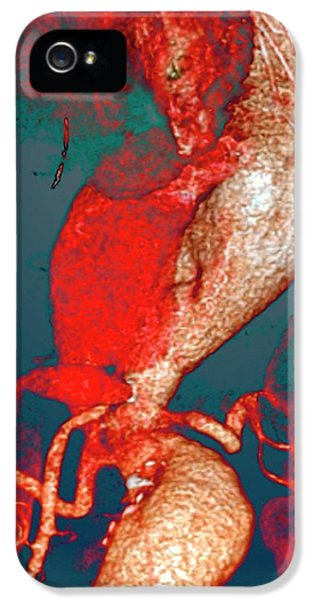 Arterial Aneurysms In Marfan Syndrome IPhone 5 Case by Zephyr