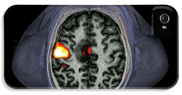 Brain Tumour IPhone 5 Case by Zephyr