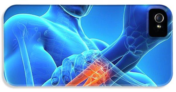 Human Arm Pain IPhone 5 / 5s Case by Sebastian Kaulitzki