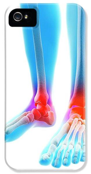 Human Inflamed Ankle IPhone 5 / 5s Case by Sebastian Kaulitzki