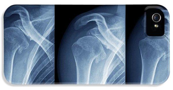 Injured Shoulder IPhone 5 Case by Zephyr
