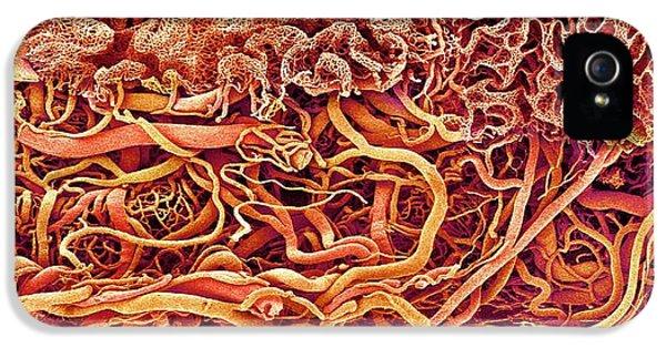 Intestinal Blood Vessels IPhone 5 Case
