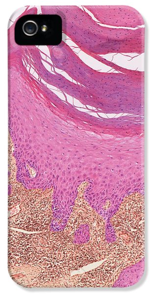 Keratoacanthoma IPhone 5 / 5s Case by Steve Gschmeissner
