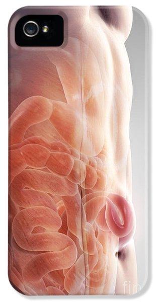 Ventral Hernia IPhone 5 Case