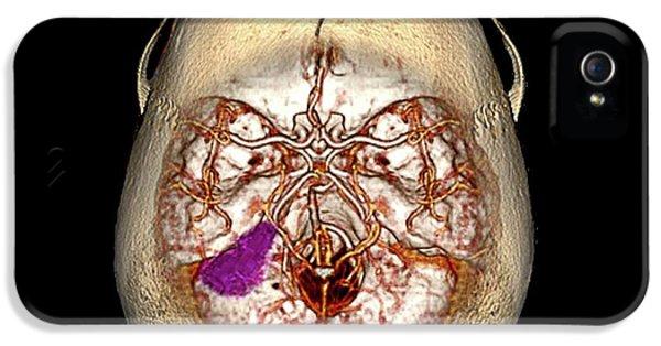Brain Tumour IPhone 5 Case
