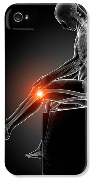 Human Knee Pain IPhone 5 / 5s Case by Sebastian Kaulitzki