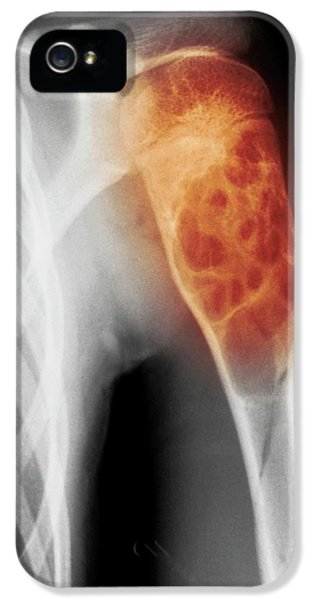 Benign Bone Cyst IPhone 5 Case by Mike Devlin