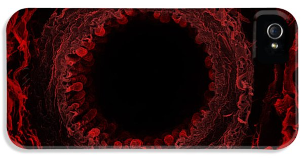 Breathe iPhone 5 Case - Cross Section Of The Bronchus by David M. Phillips