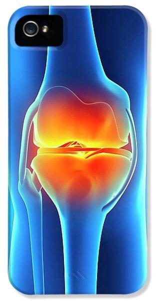 Human Knee Pain IPhone 5 Case by Sebastian Kaulitzki