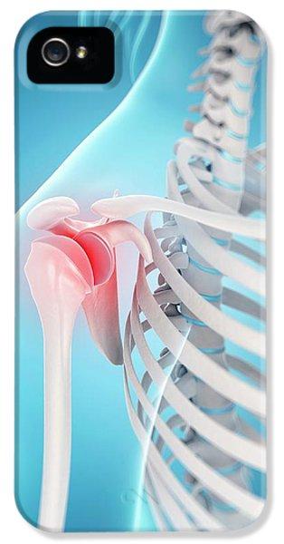 Human Shoulder Pain IPhone 5 / 5s Case by Sebastian Kaulitzki