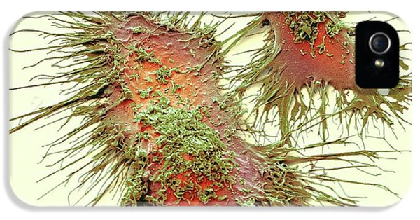 Microglia IPhone 5 Case